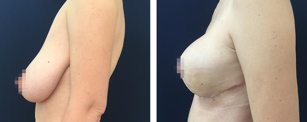Фото до и после мастопексии №5