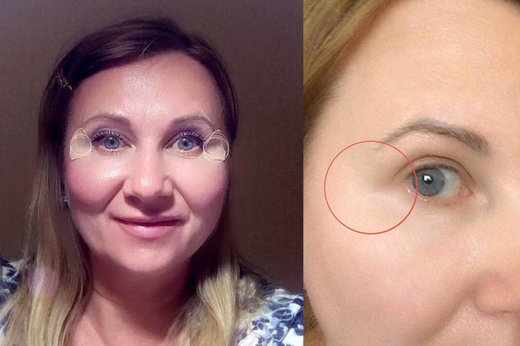Фото до и после тейпирования лица №2