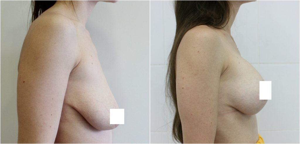 Фото до и после мастопексии №3