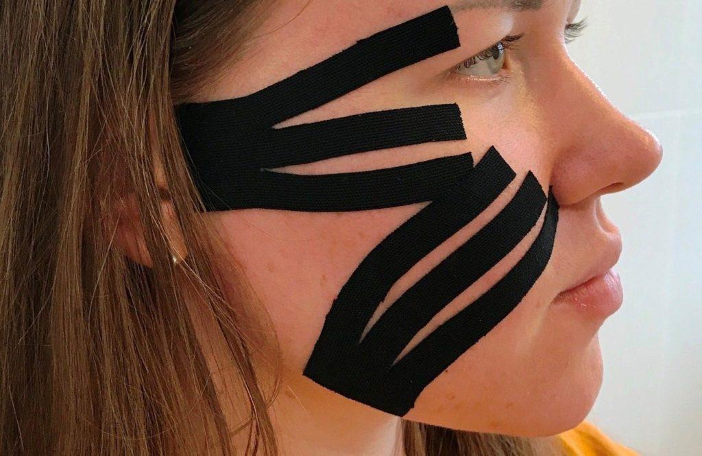 Расположение тейпов для лимфодренажного тейпирования лицевой зоны
