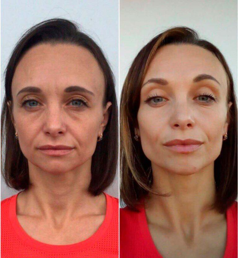 Фото до и после тейпирования лица №4