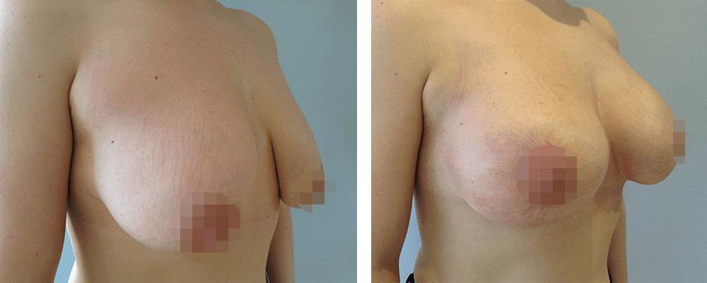 Фото до и после мастопексии №2