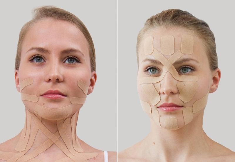 Сочетанное кинезиотейпирование лицевой зоны