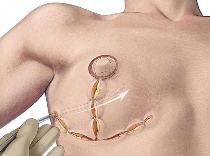 Якорная мастопексия — наиболее популярный вид операции
